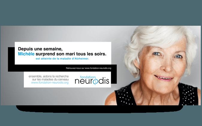 ALZHEIMER_neurodis