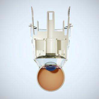 EyeTechCare-PixelDelune-Ultrasound_0005_Large_Frame01